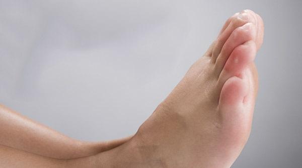 Los sabañones son dolorosos y molestos. Imagen: Remedios Caseros.