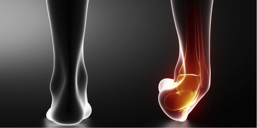 Tratamientos y cuidados de un esguince de tobillo