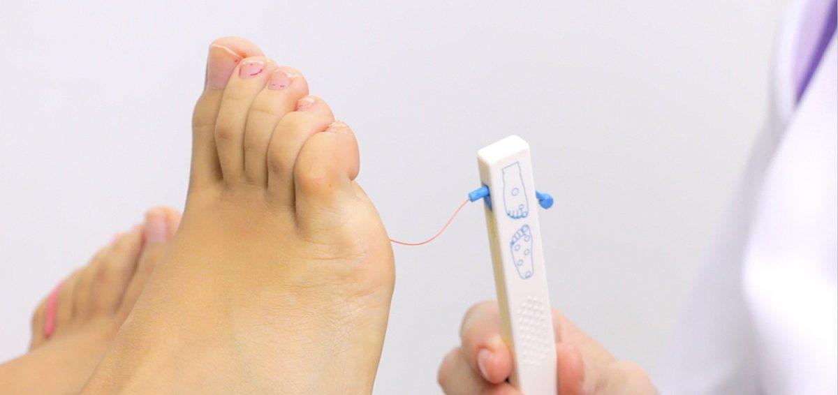 El pie diabético ¿qué es y por qué nos preocupa tanto?