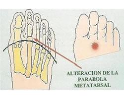 pic-metatarsalgia